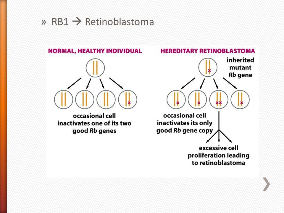RB1  Retinoblastoma