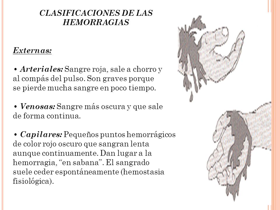 CLASIFICACIONES DE LAS HEMORRAGIAS