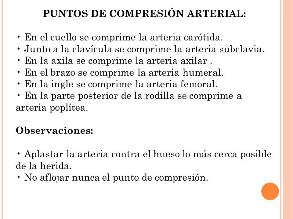 PUNTOS DE COMPRESIÓN ARTERIAL: