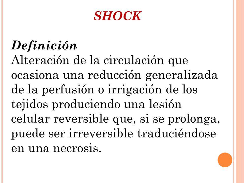 SHOCK Definición.