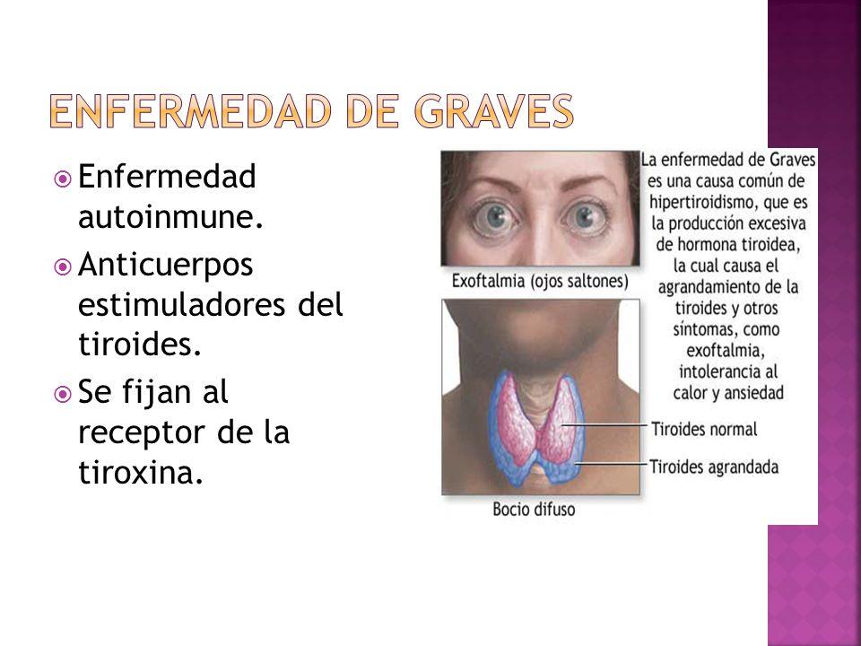Enfermedad de Graves Enfermedad autoinmune.