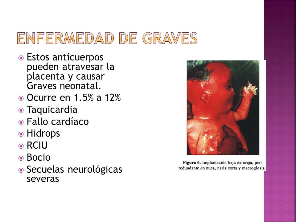 Enfermedad de Graves Estos anticuerpos pueden atravesar la placenta y causar Graves neonatal. Ocurre en 1.5% a 12%