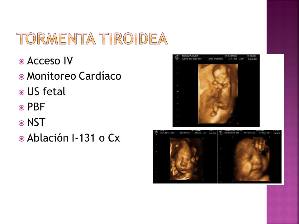 Tormenta Tiroidea Acceso IV Monitoreo Cardíaco US fetal PBF NST