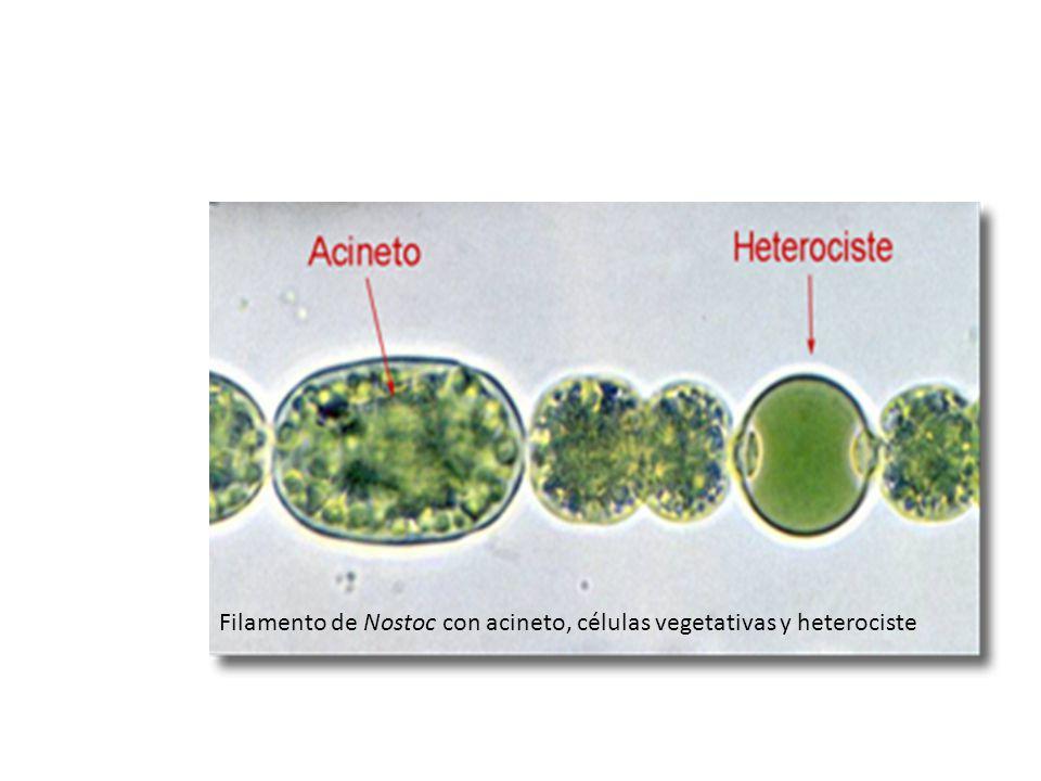 Filamento de Nostoc con acineto, células vegetativas y heterociste