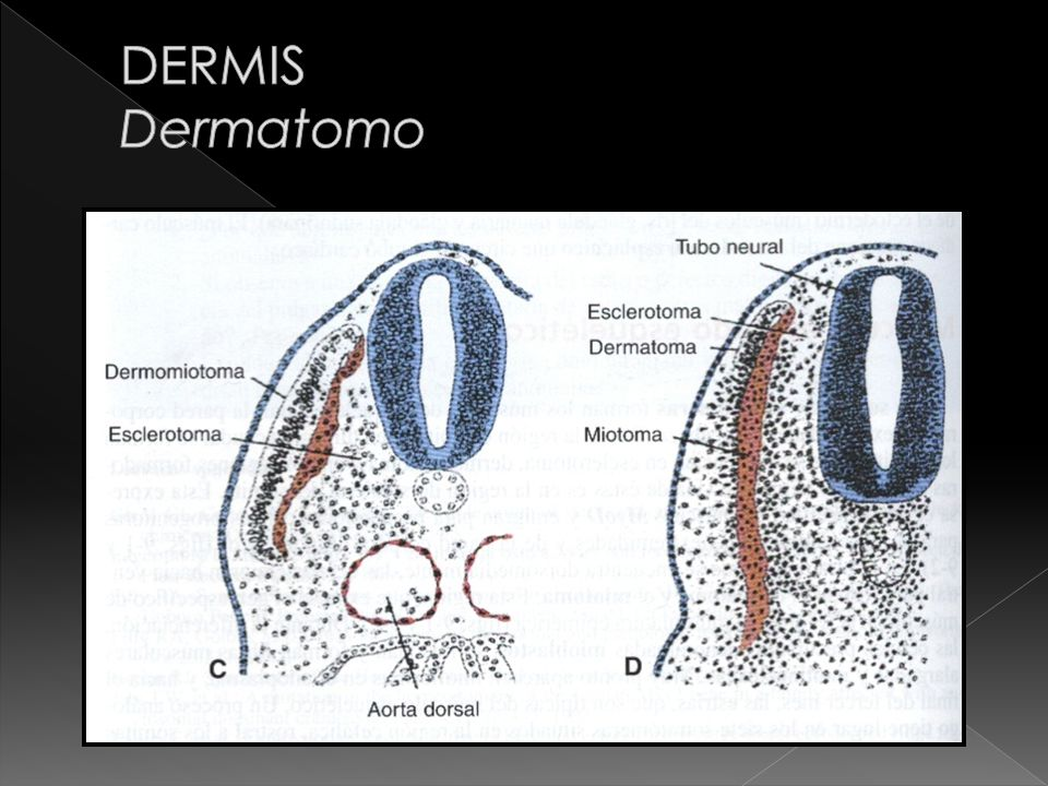 DERMIS Dermatomo