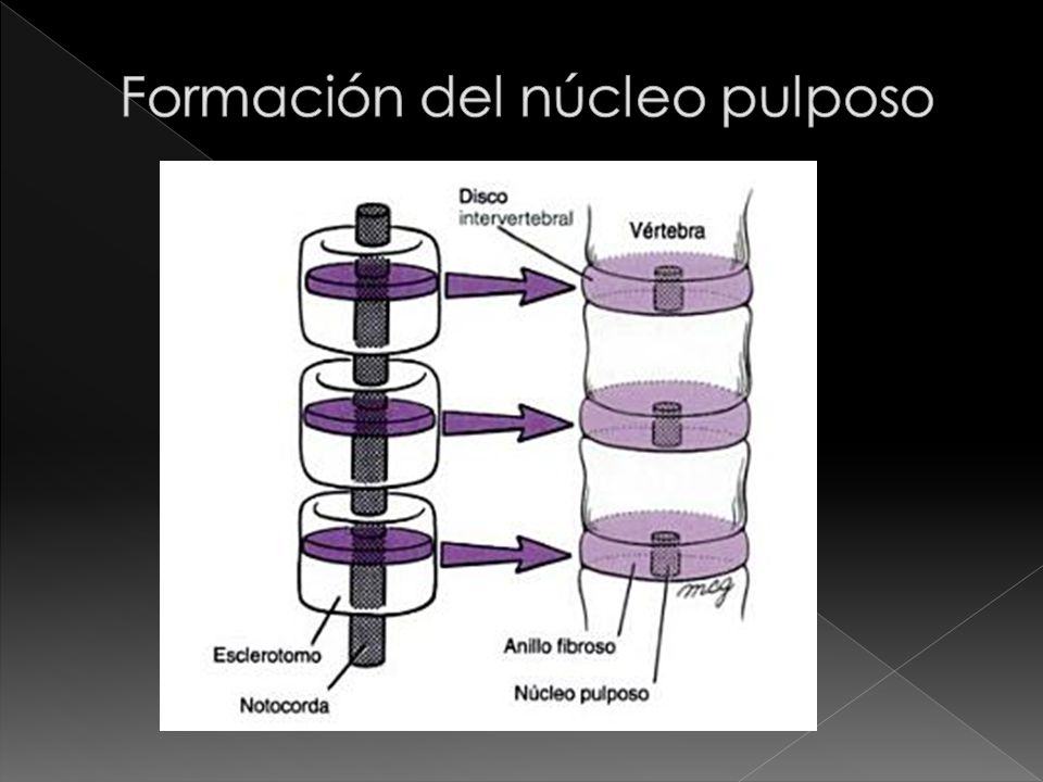 Formación del núcleo pulposo
