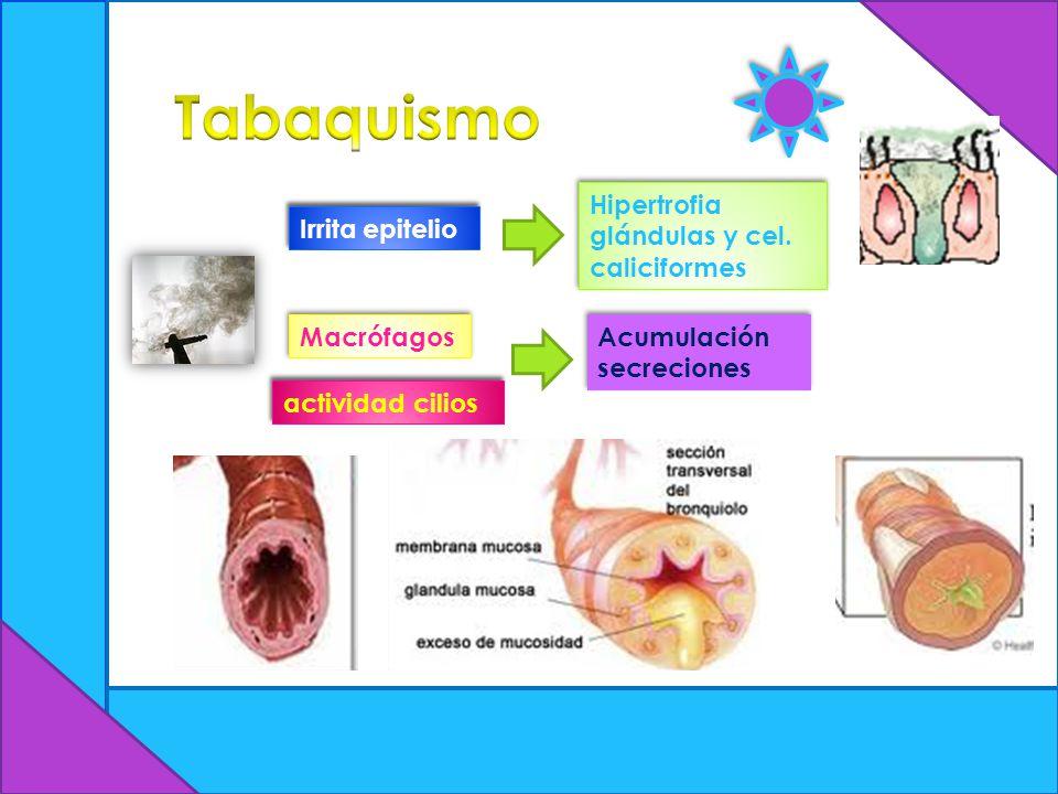 Tabaquismo Hipertrofia glándulas y cel. caliciformes Irrita epitelio