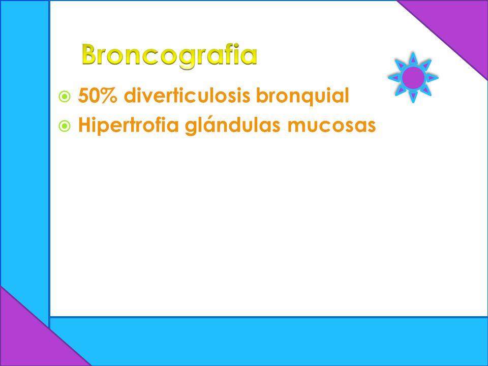 Broncografia 50% diverticulosis bronquial