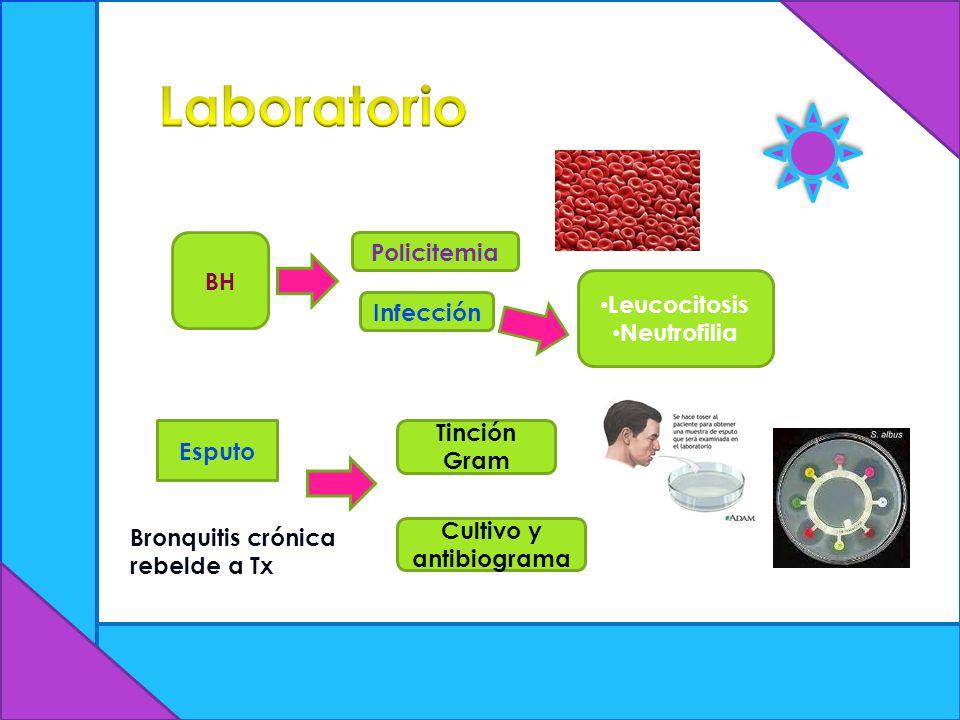 Cultivo y antibiograma