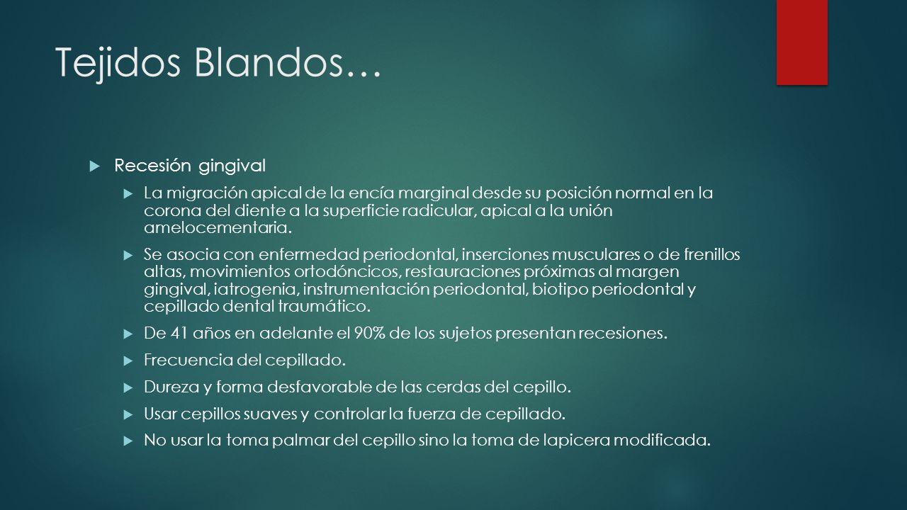 Tejidos Blandos… Recesión gingival