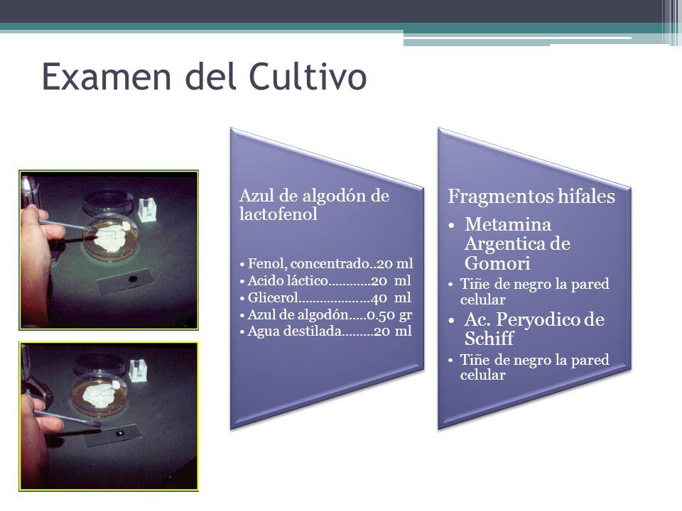 Examen del Cultivo Cardaje Fragmentos hifales