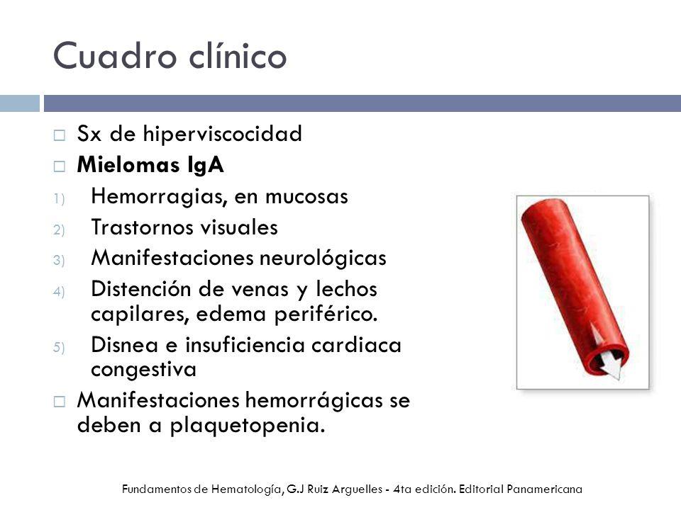 Cuadro clínico Sx de hiperviscocidad Mielomas IgA