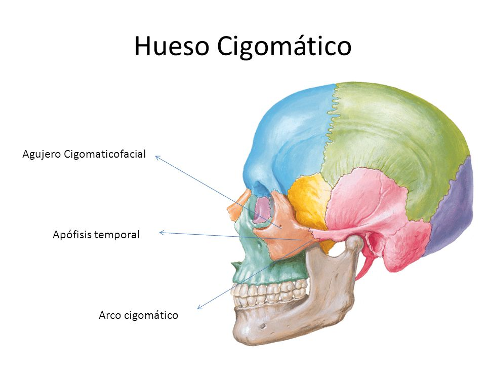 Hueso Cigomático Agujero Cigomaticofacial Apófisis temporal