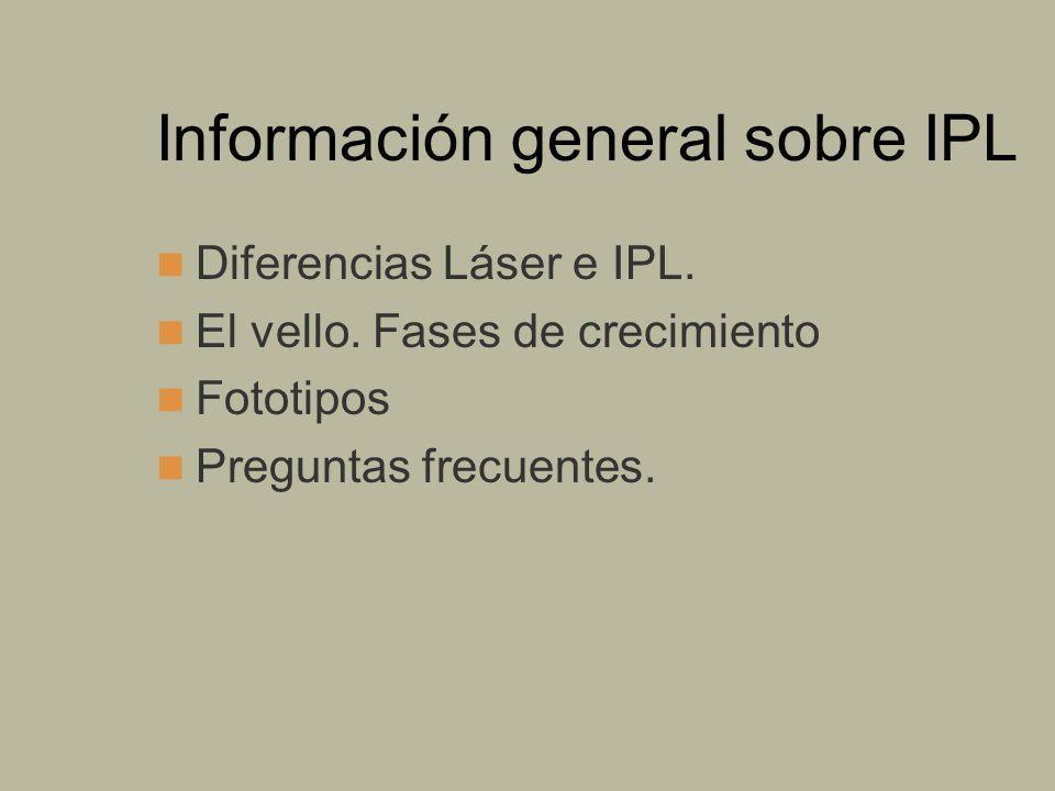 Información general sobre IPL