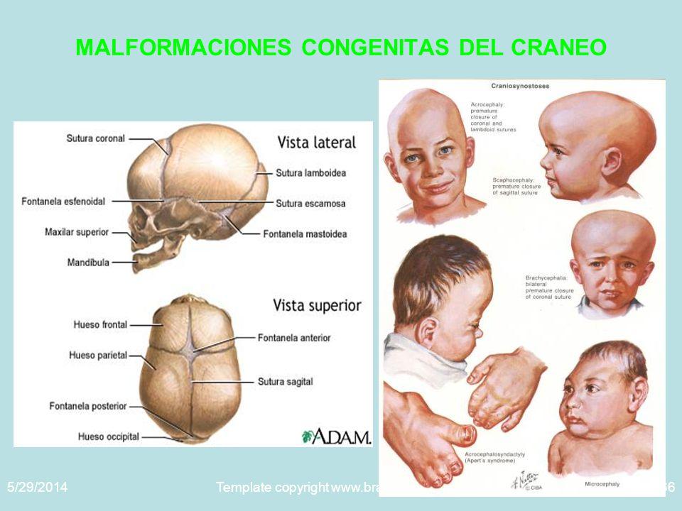 MALFORMACIONES CONGENITAS DEL CRANEO