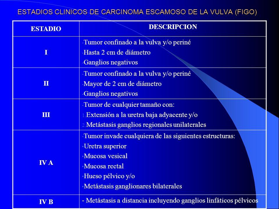 ESTADIOS CLINICOS DE CARCINOMA ESCAMOSO DE LA VULVA (FIGO)