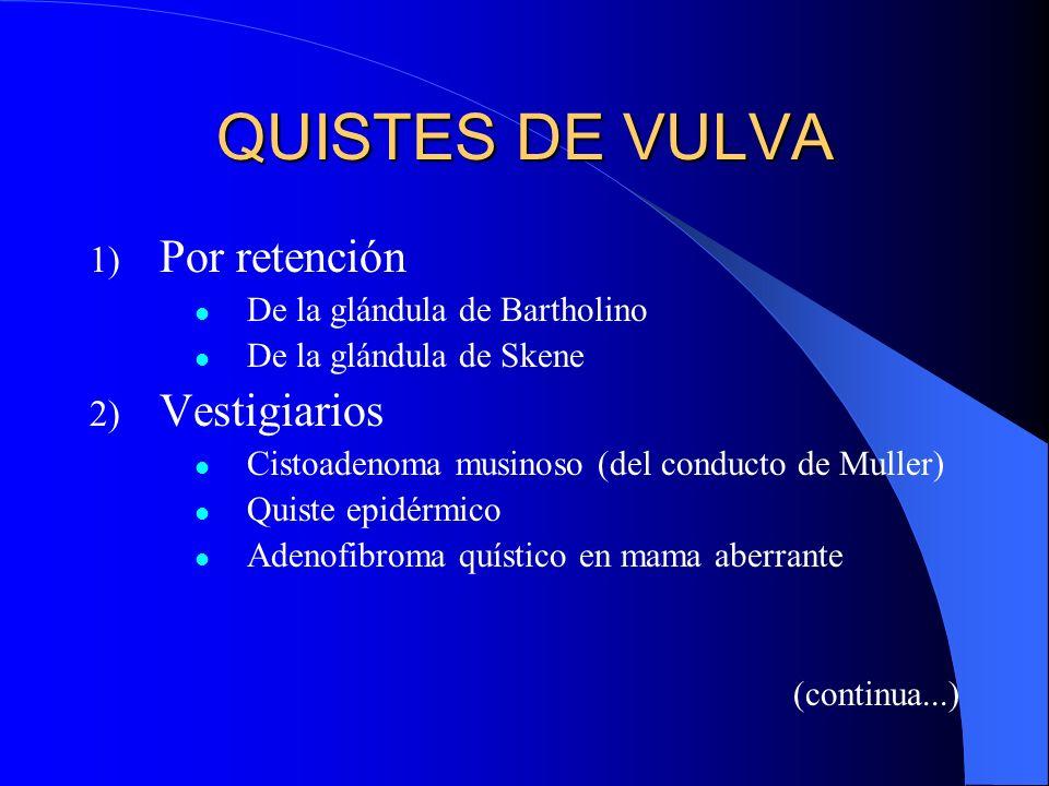 QUISTES DE VULVA Por retención Vestigiarios