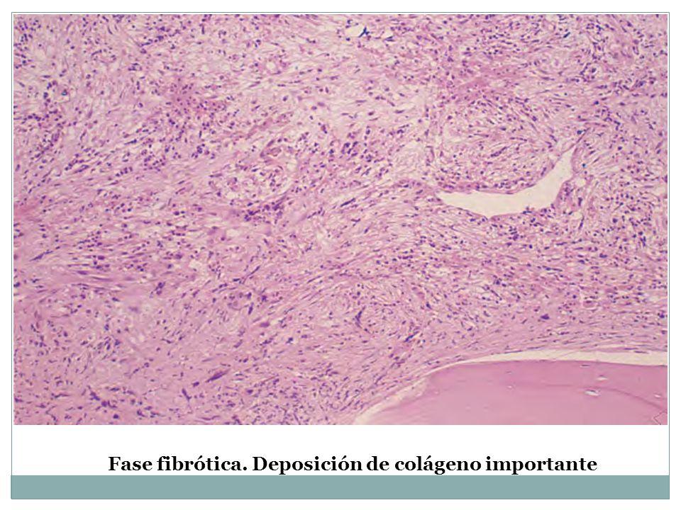 Fase fibrótica. Deposición de colágeno importante