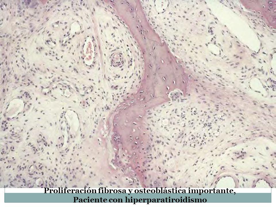 Proliferación fibrosa y osteoblástica importante,