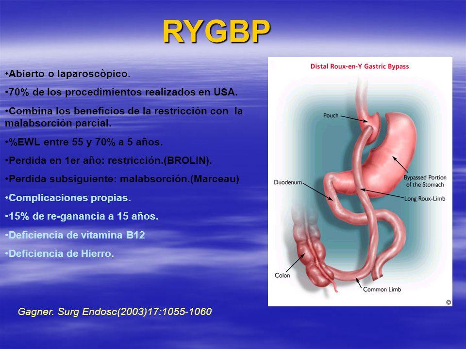 RYGBP Abierto o laparoscòpico.