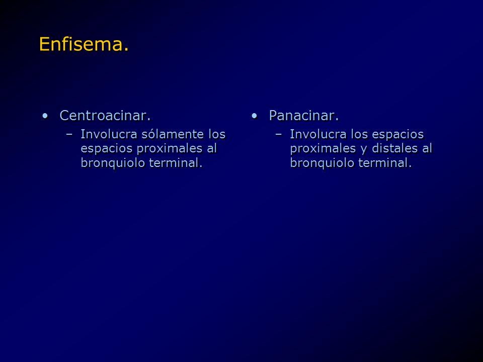 Enfisema. Centroacinar. Panacinar.