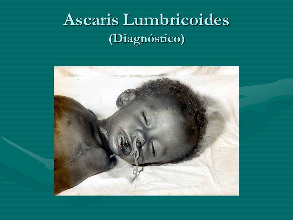Ascaris Lumbricoides (Diagnóstico)