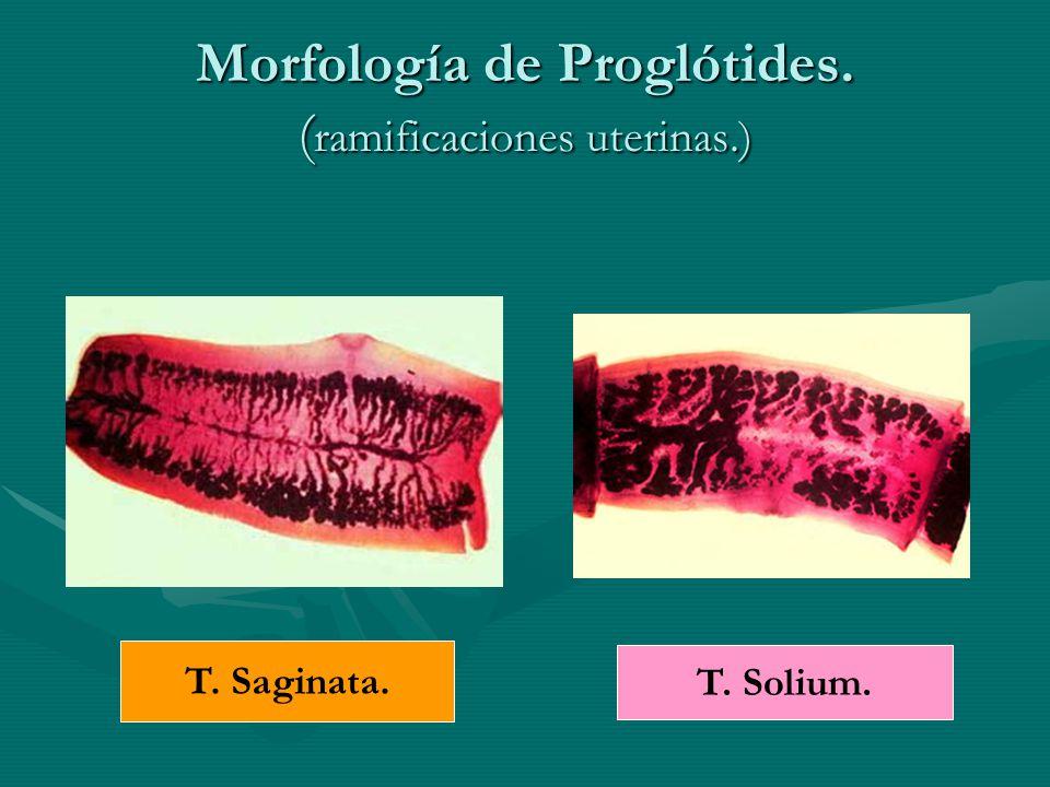 Morfología de Proglótides. (ramificaciones uterinas.)
