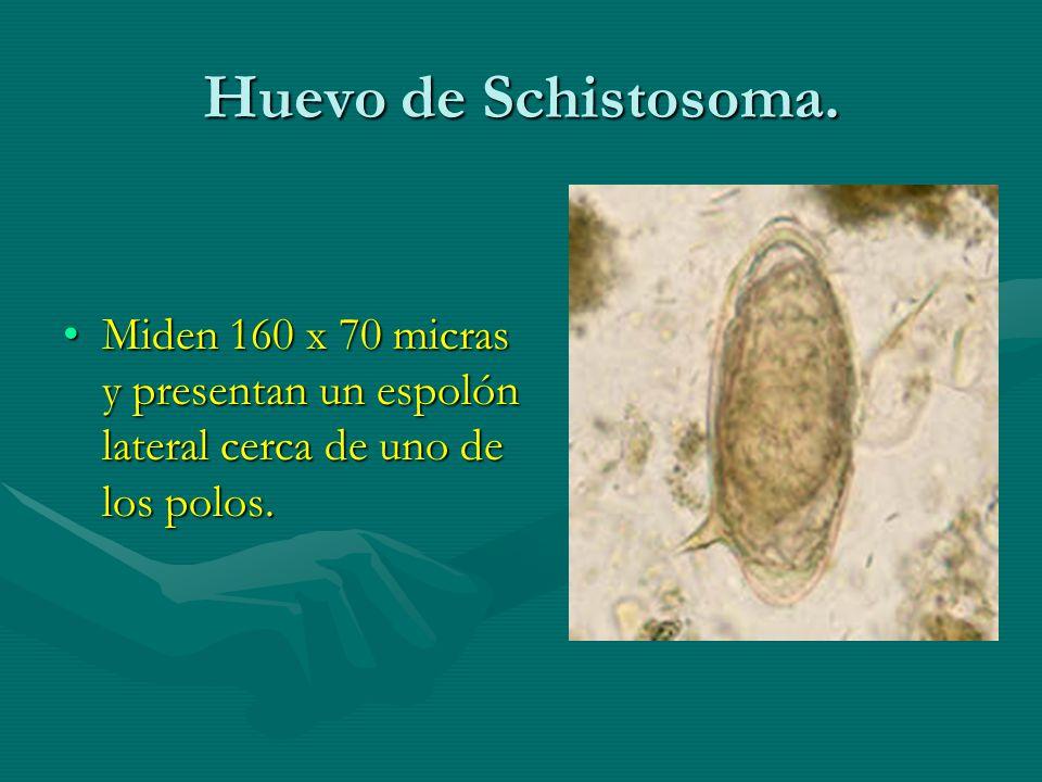 Huevo de Schistosoma.