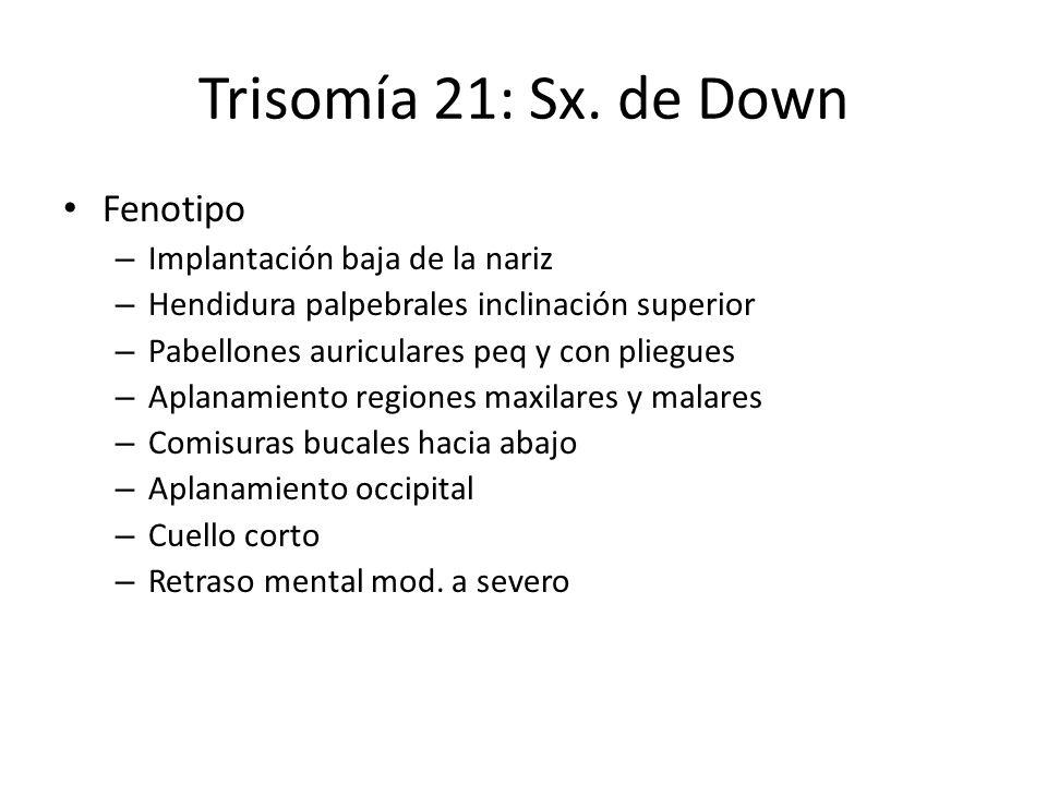 Trisomía 21: Sx. de Down Fenotipo Implantación baja de la nariz