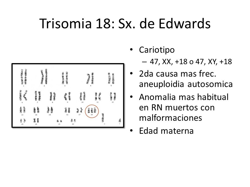Trisomia 18: Sx. de Edwards