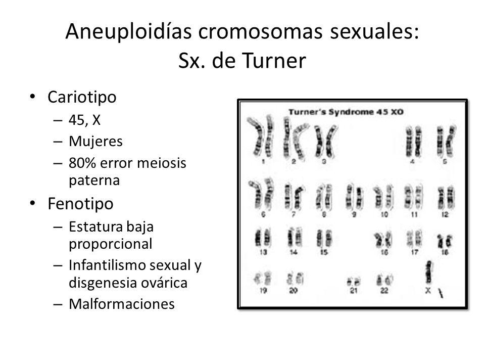 Aneuploidías cromosomas sexuales: Sx. de Turner