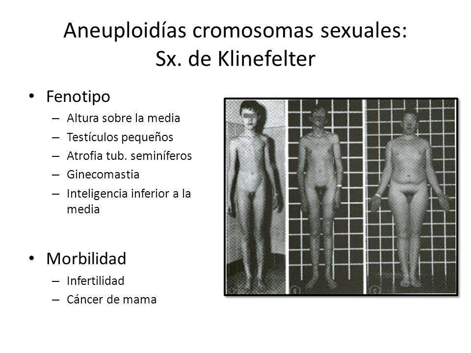 Aneuploidías cromosomas sexuales: Sx. de Klinefelter