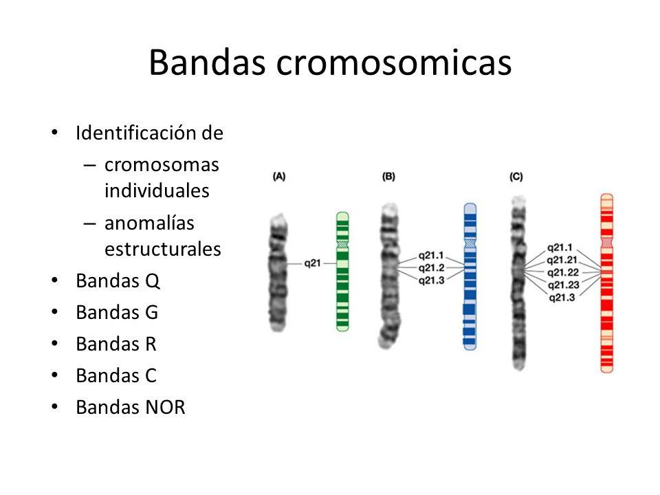 Bandas cromosomicas Identificación de cromosomas individuales