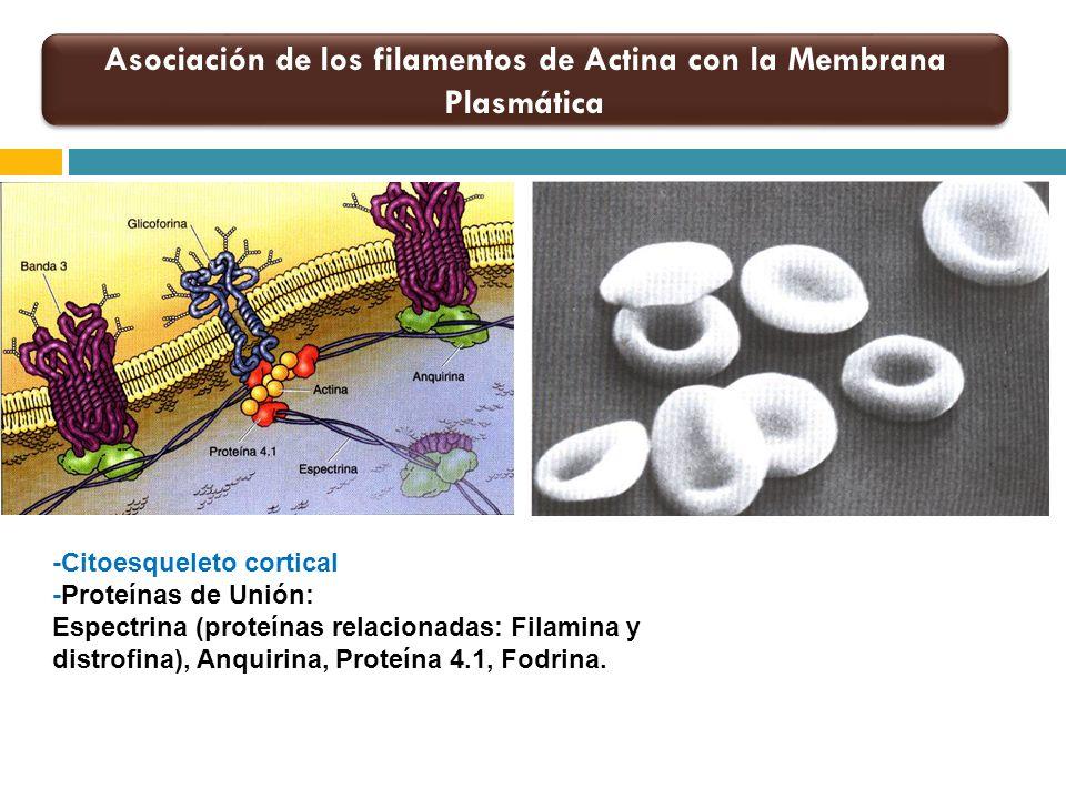 Asociación de los filamentos de Actina con la Membrana Plasmática