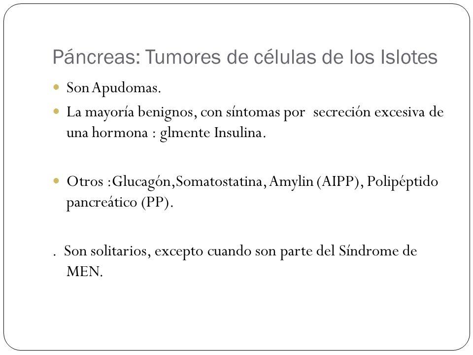 Páncreas: Tumores de células de los Islotes
