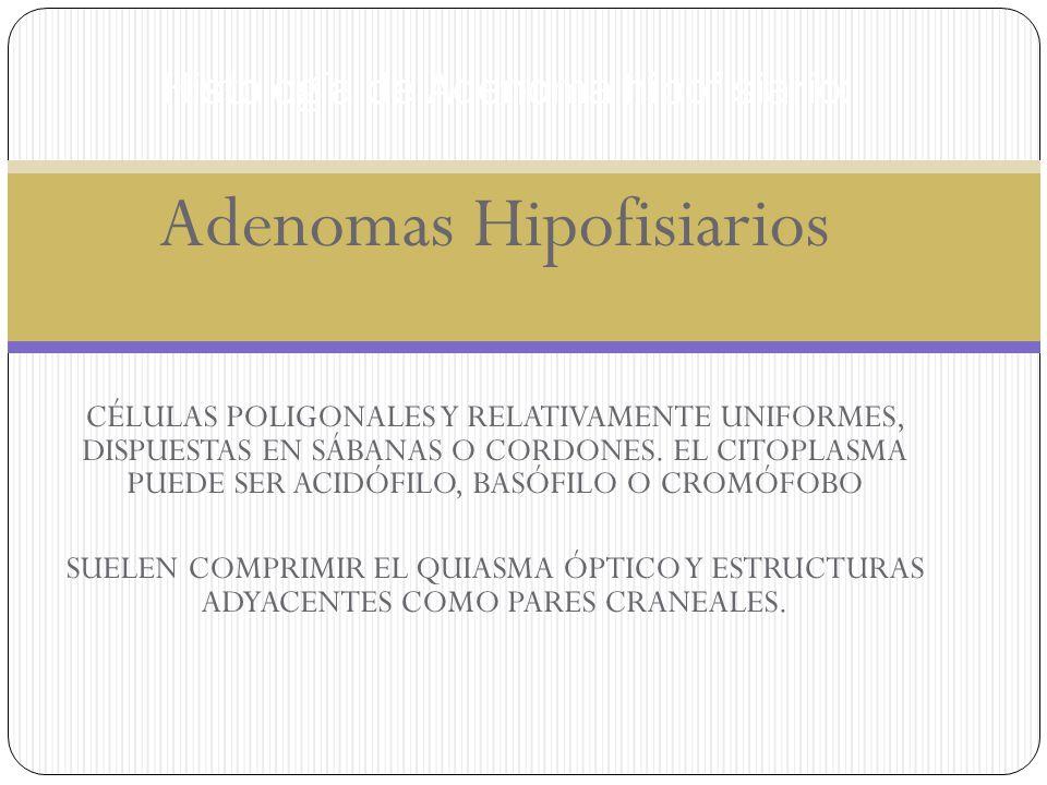 Histología de Adenoma hipofisiario: