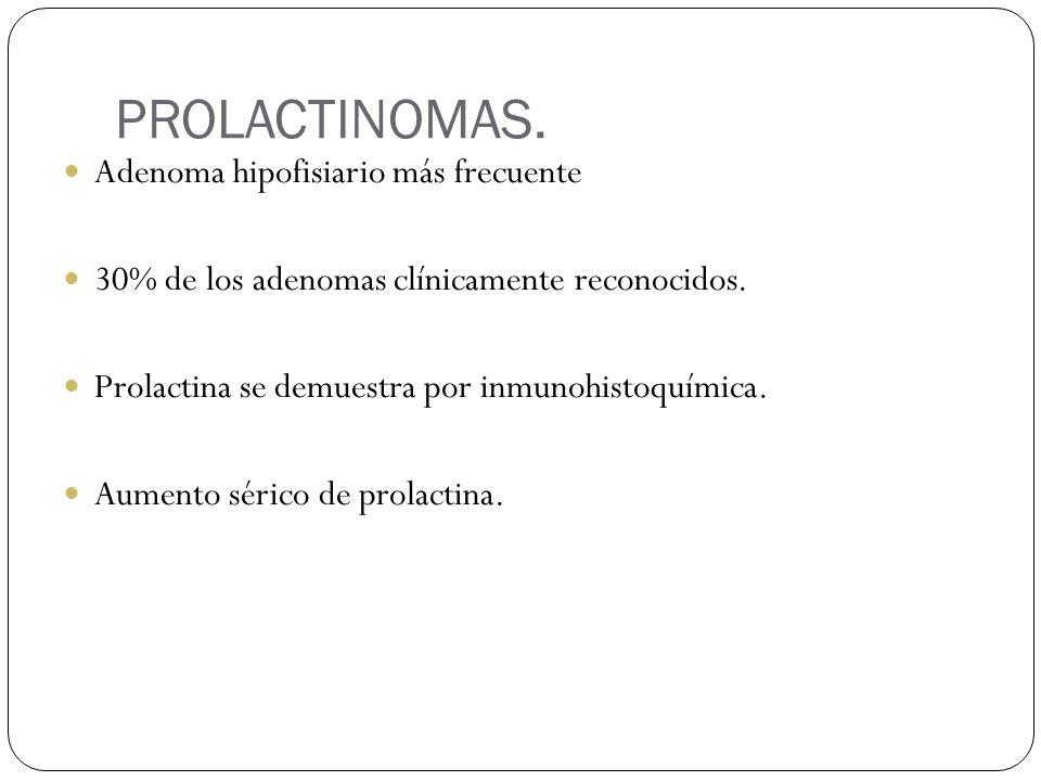 PROLACTINOMAS. Adenoma hipofisiario más frecuente