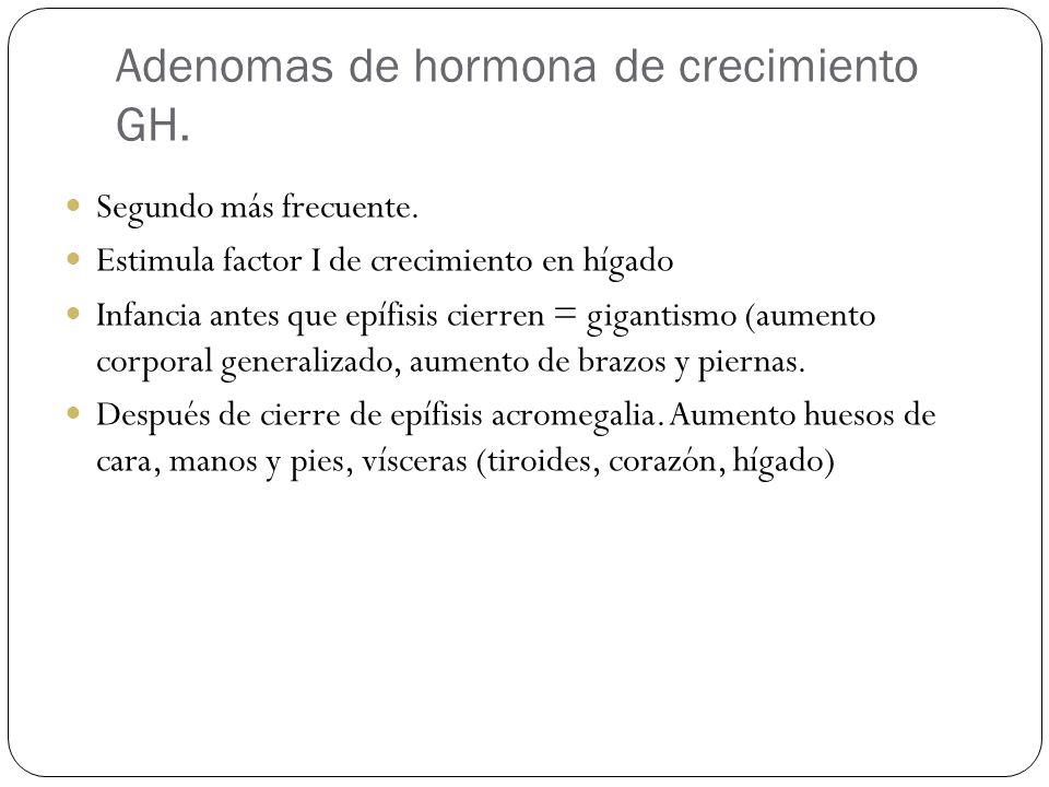 Adenomas de hormona de crecimiento GH.