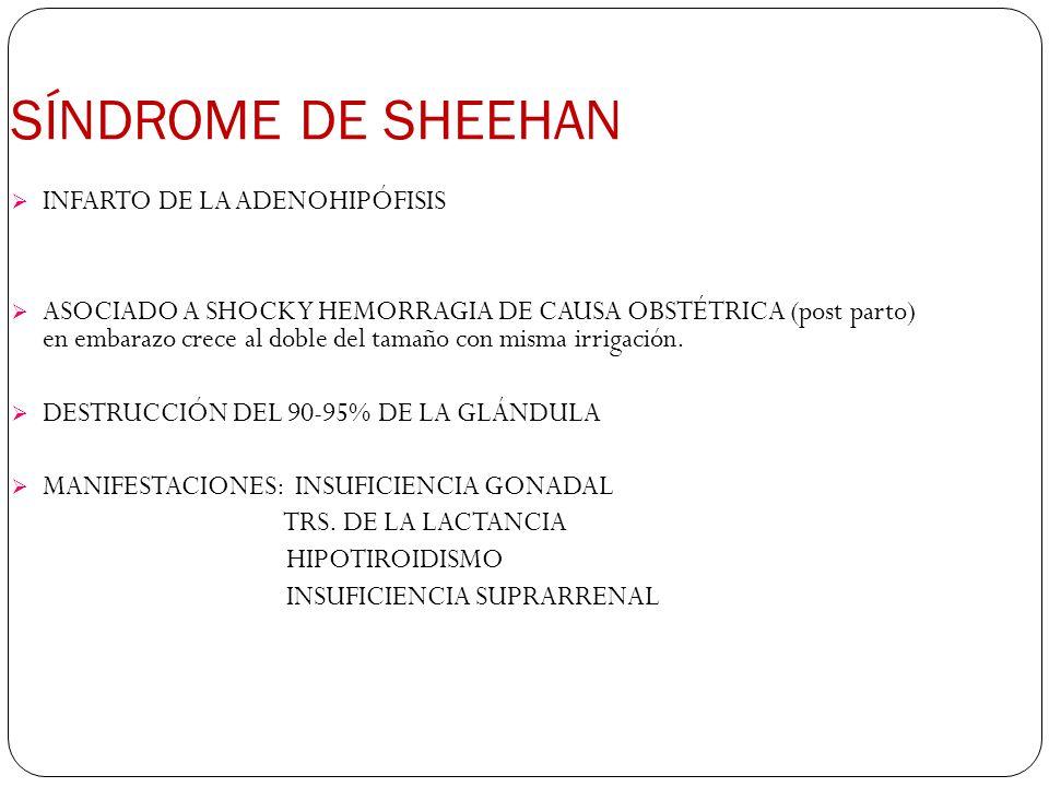 SÍNDROME DE SHEEHAN INFARTO DE LA ADENOHIPÓFISIS