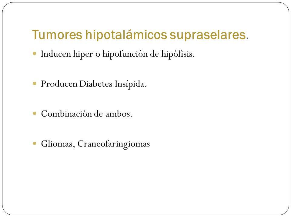 Tumores hipotalámicos supraselares.