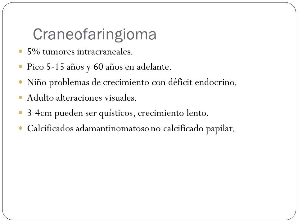 Craneofaringioma 5% tumores intracraneales.