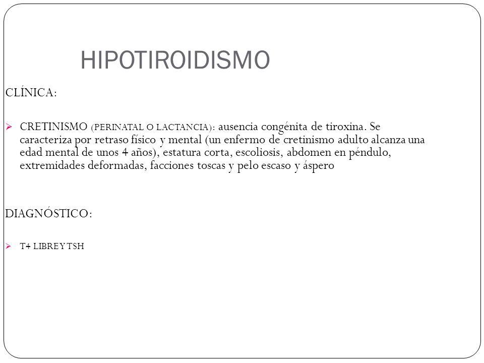 HIPOTIROIDISMO CLÍNICA: DIAGNÓSTICO:
