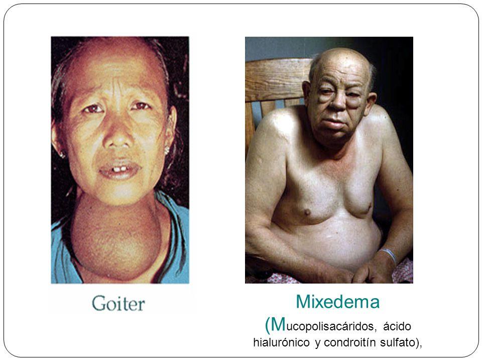 Mixedema (Mucopolisacáridos, ácido hialurónico y condroitín sulfato),