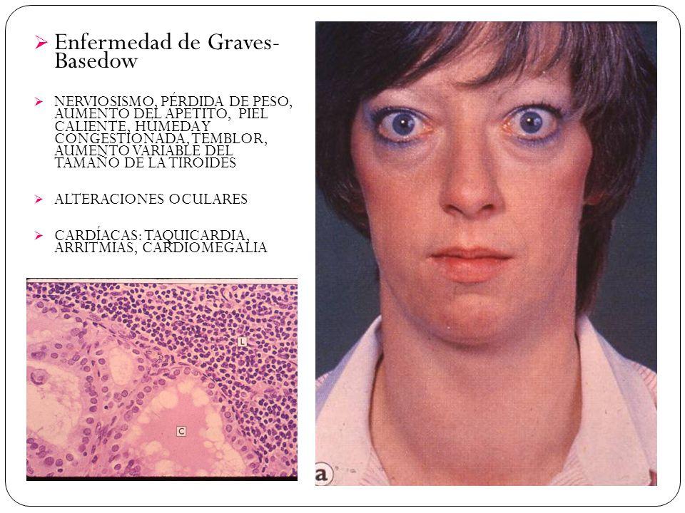 Enfermedad de Graves- Basedow