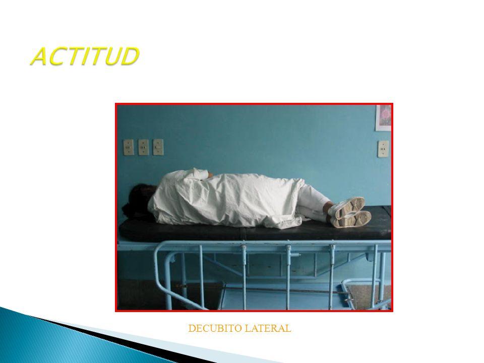 ACTITUD DECUBITO LATERAL