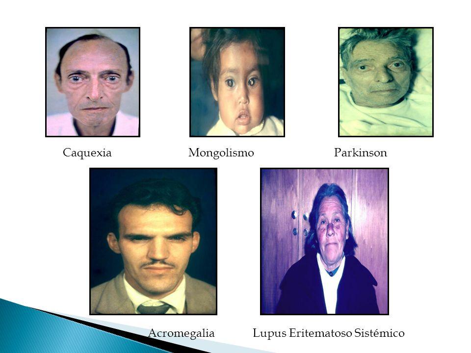 Caquexia Mongolismo Parkinson