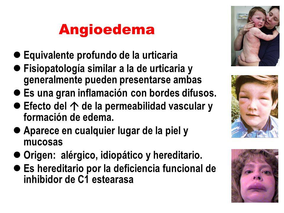 Angioedema Equivalente profundo de la urticaria