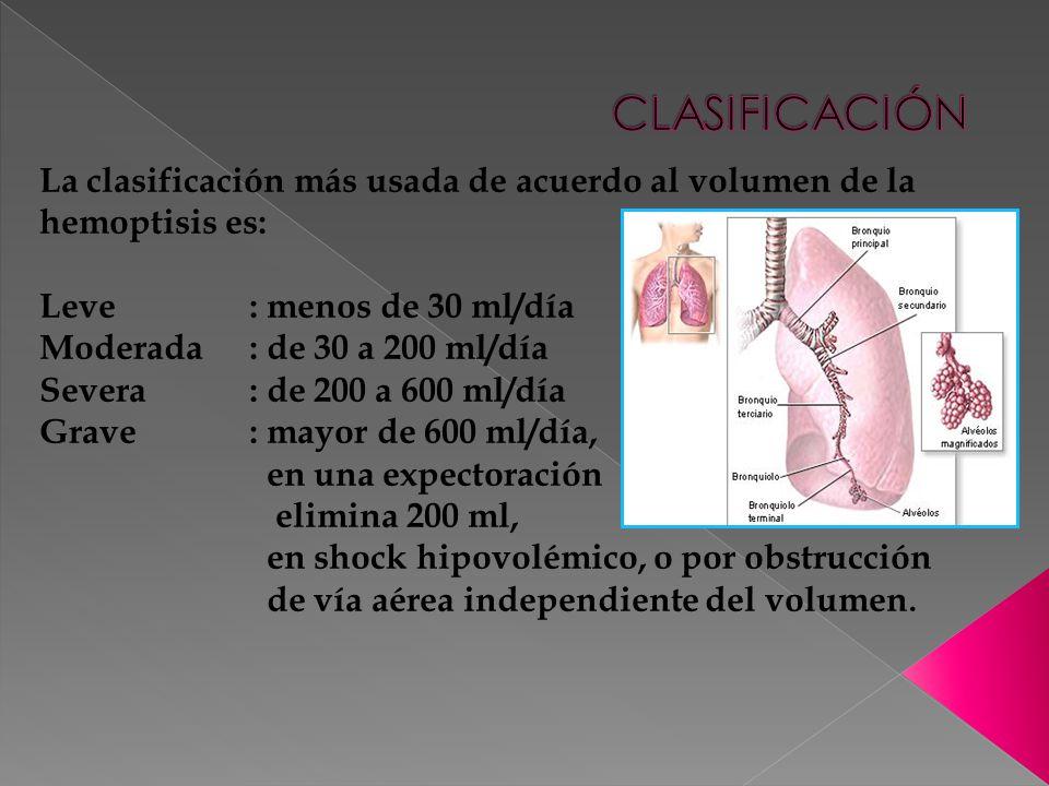 CLASIFICACIÓN La clasificación más usada de acuerdo al volumen de la hemoptisis es: Leve : menos de 30 ml/día.