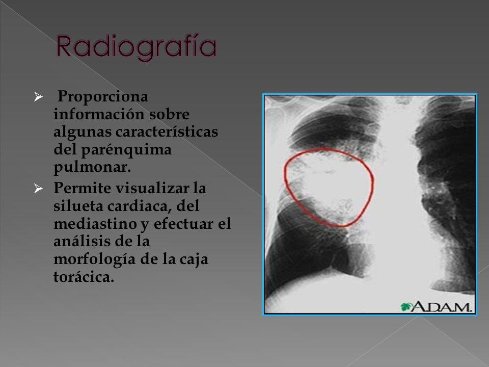 Radiografía Proporciona información sobre algunas características del parénquima pulmonar.