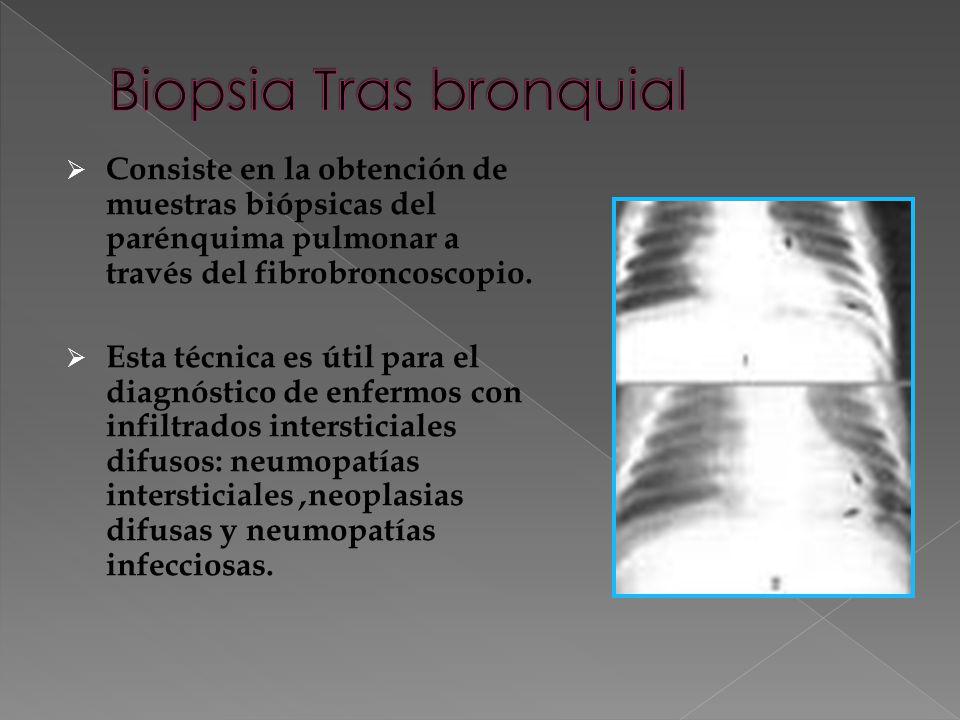 Biopsia Tras bronquial